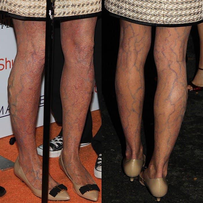 Heidi Klum's legs with spider veinsandvaricose veins